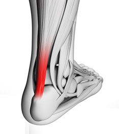 achilles-tendonitis-large